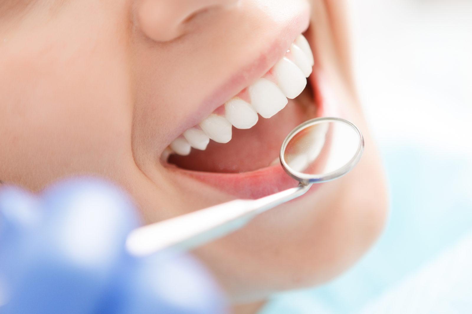 igienista dentale preventivo veloce
